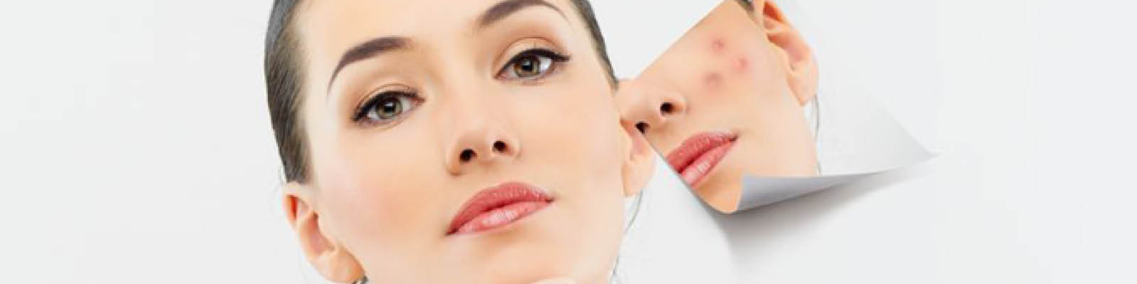 Skin Whitening Treatment In Koramangala Bangalore